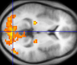 fMRI of Tonal Area in Brain